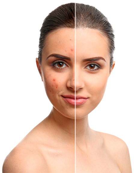 Acne Scarring | Aesthetic Systems, Medical Lasers | Private