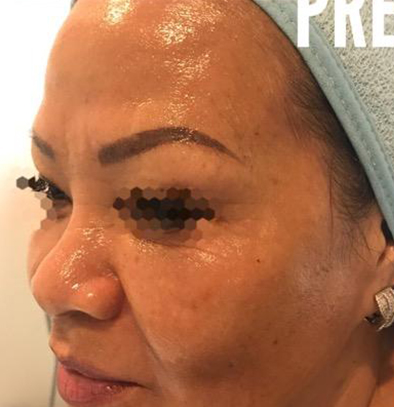 Radio Frequency Skin Tightening Device in Los Angeles, CA
